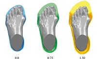Machining Parameter Optimization of EVA Foam Orthotic Shoe Insoles